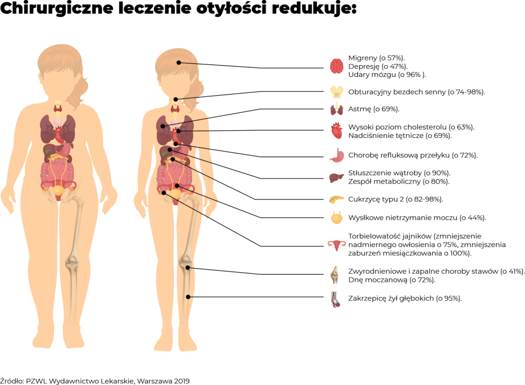 Korzyści z operacji bariatrycznych