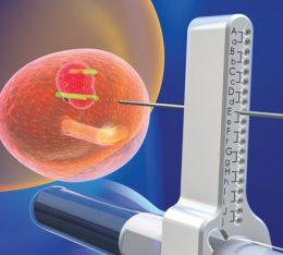 Biopsja fuzyjna prostaty – nowoczesna technika diagnostyczna nowotworu gruczołu krokowego w Szpitalu na Klinach