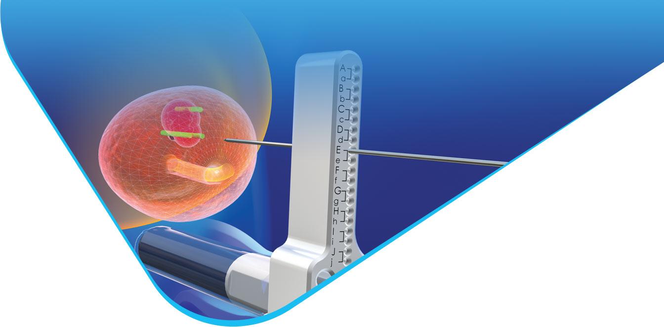 biopsja fuzyjna prostaty gruczołu krokowego w krakowskim szpitalu na klinach