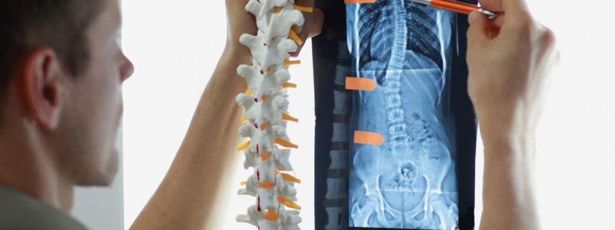 małoinwazyjne operacje kręgosłupa