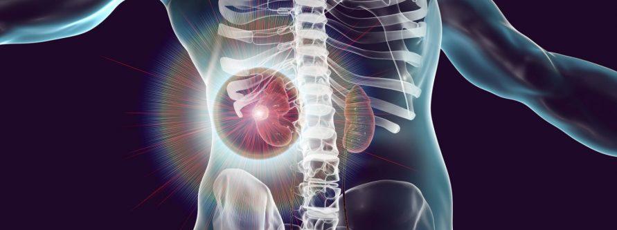Jak leczyć raka nerki
