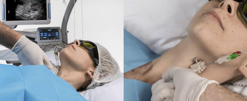 w jaki sposob wykonywany jest zabieg laserowej ablacji guza tarczycy
